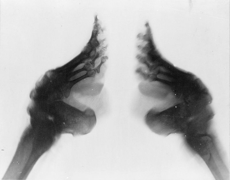 800px-Bound_feet_(X-ray)