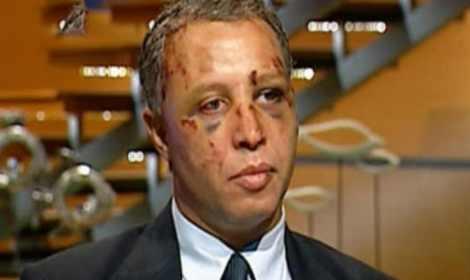 السفير يحيى نجم - صورة أرشيفية من وقائع الضرب التي تعرض لها في أحداث الاتحادية قبل 3 سنوات