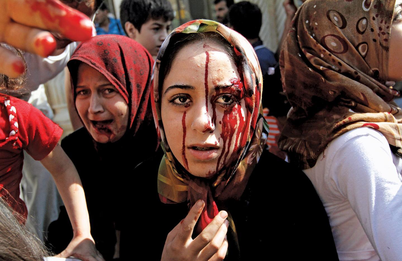 امرأة سورية جريحة في مستشفى ميداني ببلدة أعزاز شمال حلب - الصورة من 12 أغسطس 2012 أثناء ما عرف بـ معركة حلب الكبرى